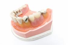 最新のシステムでバランスのとれた入れ歯をつくっています